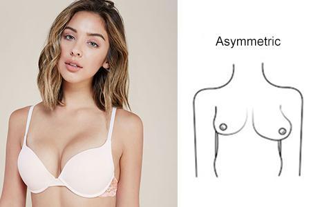 1-breast_shape-asymmetric
