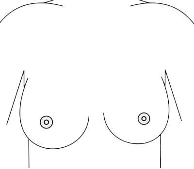asymmetrical boobs